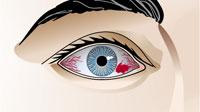 venas rojas en el ojo izquierdo