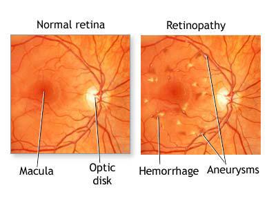 Fundoscopia de retinopatía hipertensiva