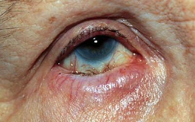 verruga en el parpado inferior del ojo