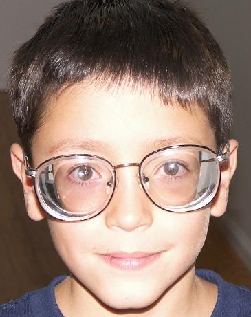 74170f5ab9 Unas gafas de miopía alta hacen que desde fuera los ojo del miope se vean  más pequeñitos, y una hipermetropia alta hace los ojos más grandes.