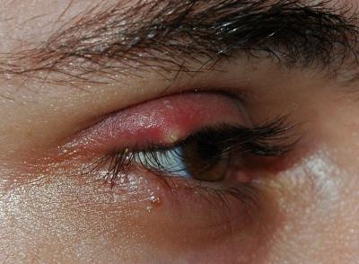 Salud: Quistes Oculares