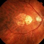 Conflicto de intereses (VIII): la degeneración macular asociada a la edad