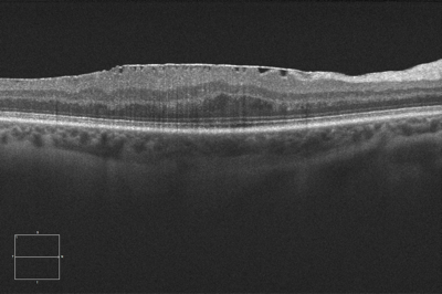 vitreoretinal-interface-epiretinal-membrane-c