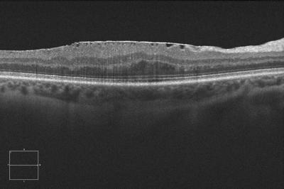 vitreoretinal-interface-epiretinal-membrane-c